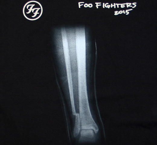 Foo Fighters / Broken Leg Tee (Black)